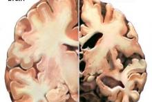 Alzheimer - nazwa oswojona, choroba - nie :(