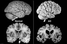 Choroba Alzheimera i mózg